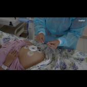 Janitri Fetal ECG and Uterine EMG based fetal monitor - KEYAR