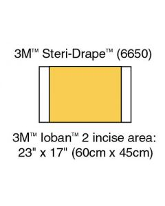 3M™ Ioban™ Antimicrobial Incise Drapes 6650, Box of 10
